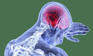 Fibromyalgia, RepresentMyself