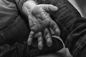 Psoriasis and Psoriatic Arthritis, RepresentMyself